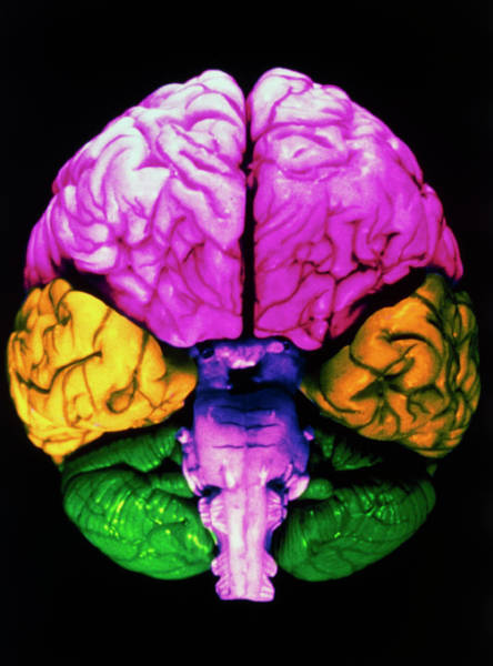 Mri Photograph - Coloured 3-d Mri Scan Of A Healthy Brain by Gca/science Photo Library