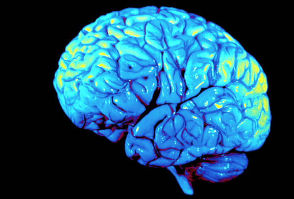 Mri Photograph - Coloured 3-d Mri Scan Of Brain Seen From The Side by Gjlp/science Photo Library