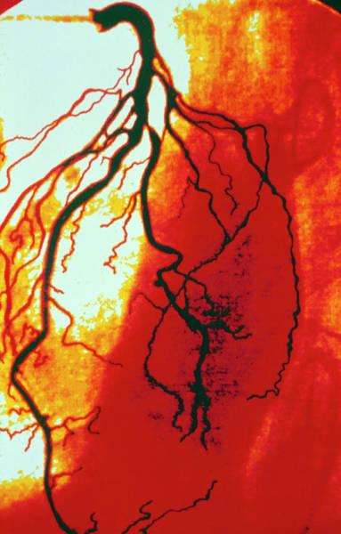 Coloured Angiogram Of Coronary Artery Of The Heart Art Print