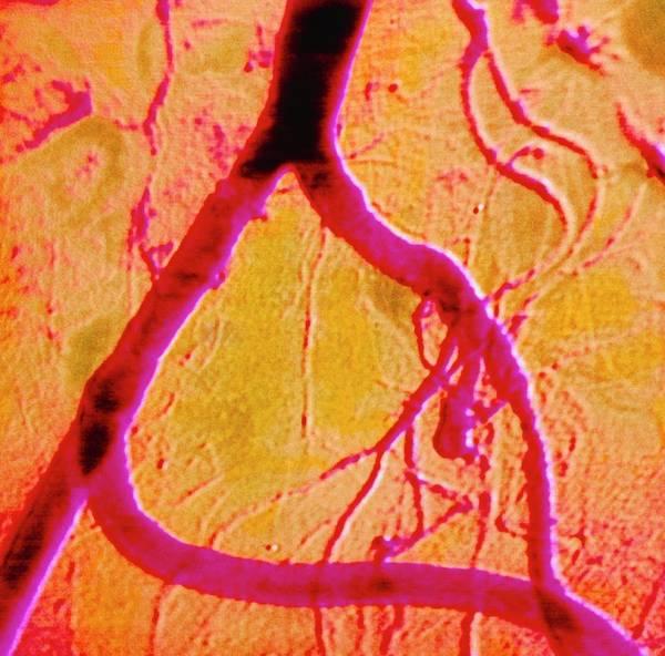 Coloured Angiogram Of Iliac Artery Bypass Art Print