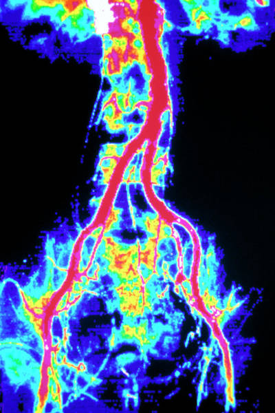 Abdominal Photograph - Coloured Angiogram Of Normal Aorta Artery by Gca/science Photo Library