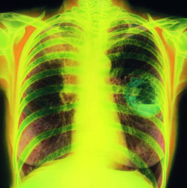 Wall Art - Photograph - Coloured Chest X-ray Showing Lung Cancer by Simon Fraser/science Photo Library