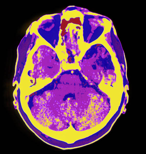Cerebral Photograph - Coloured Ct Scan Of The Brain Showing A Stroke by Mehau Kulyk/science Photo Library