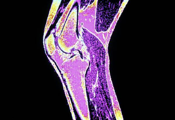 Mri Photograph - Coloured Mri Of A Section Through A Knee Joint by Cnri/science Photo Library