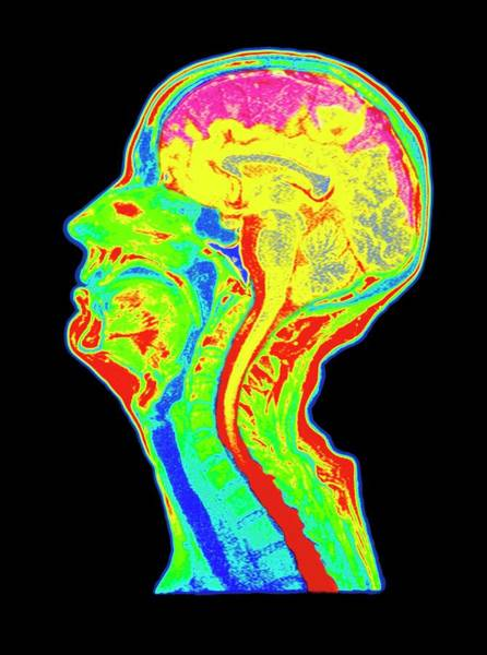 Mri Scan Wall Art - Photograph - Coloured Mri Scan Of A Brain With Cerebral Atrophy by Simon Fraser/royal Victoria Infirmary, Newcastle Upon Tyne/science Photo Library