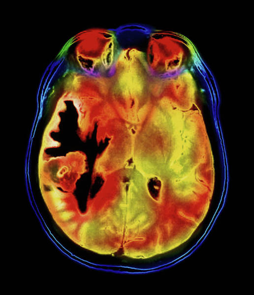 Brain Cancer Wall Art - Photograph - Coloured Mri Scan Of A Metastatic Brain Tumour by Simon Fraser/royal Victoria Infirmary, Newcastle Upon Tyne/science Photo Library