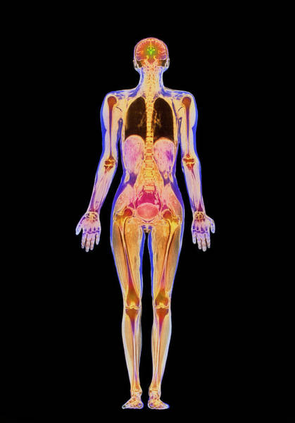 Mri Scan Wall Art - Photograph - Coloured Mri Scan Of A Whole Human Body (female) by Simon Fraser/science Photo Library