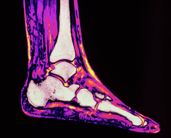 Mri Photograph - Coloured Mri Scan Of Ankle Bones In The Human Foot by Simon Fraser/rvi, Newcastle Upon Tyne/ Science Photo Library