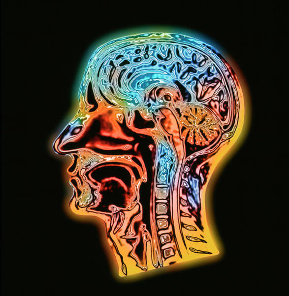Mri Photograph - Coloured Mri Scan Of The Human Head (side View) by Alfred Pasieka/science Photo Library