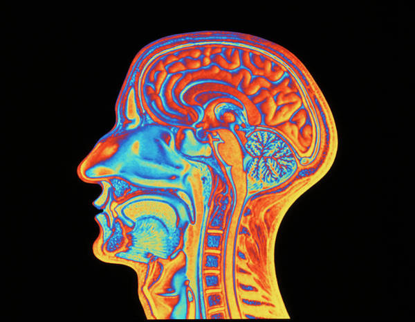 Cerebrum Photograph - Coloured Mri Scan Of The Human Head (side View) by Pasieka