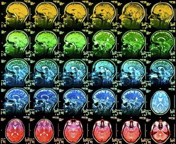 Wall Art - Photograph - Coloured Mri Scans Of A Healthy Human Brain by Simon Fraser/science Photo Library