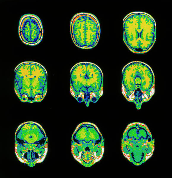 Mri Scan Wall Art - Photograph - Coloured Mri Scans Of The Brain by Wellcome Dept. Of Cognitive Neurology/ Science Photo Library