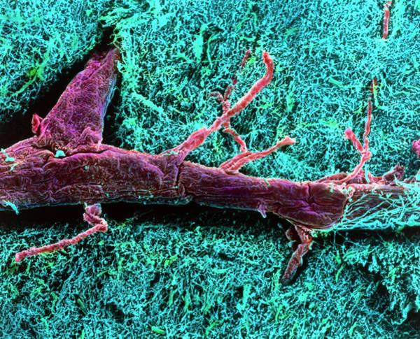 Spinal Cord Photograph - Coloured Sem Of A Blood Vessel In The Spinal Cord by Steve Gschmeissner/science Photo Library