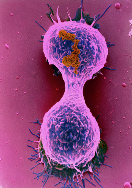 Wall Art - Photograph - Coloured Sem Of A Dividing Breast Cancer Cell by Steve Gschmeissner/science Photo Library