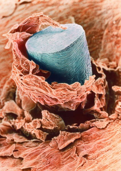 Hair Cuts Wall Art - Photograph - Coloured Sem Of A Shaved Hair In The Skin by Steve Gschmeissner/science Photo Library