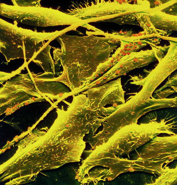 Cancer Wall Art - Photograph - Coloured Sem Of Human Melanoma Cancer Cells by National Cancer Institute/science Photo Library