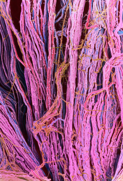 Myelin Wall Art - Photograph - Coloured Sem Of Nerve Fibres by Steve Gschmeissner/science Photo Library
