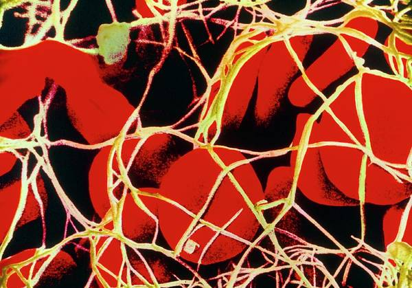 Fibrin Wall Art - Photograph - Coloured Sem Of Red Blood Cells Tangled In Fibrin by Cnri/science Photo Library