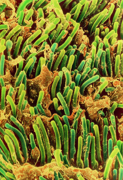 Wall Art - Photograph - Coloured Sem Of Rod Cells In The Retina Of The Eye by Steve Gschmeissner/science Photo Library