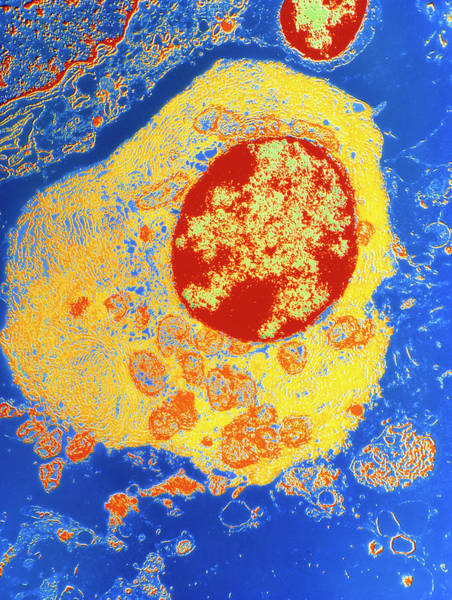 Wall Art - Photograph - Coloured Tem Of Plasma Cell From A Lymph Node by Science Photo Library