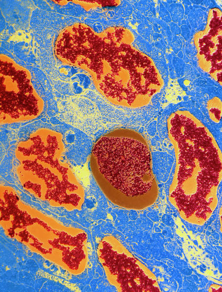 Wall Art - Photograph - Coloured Tem Of White Blood Cells In Aids by Science Photo Library