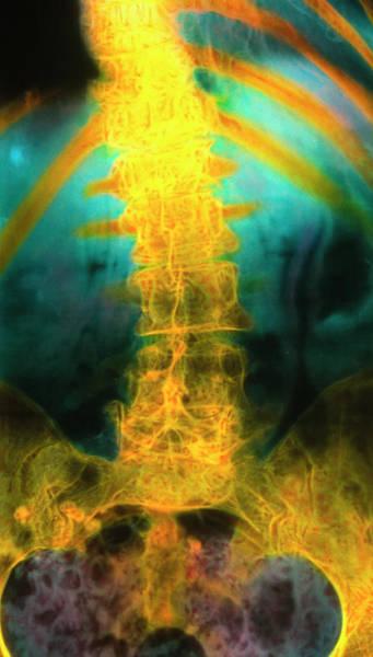 Vertebra Photograph - Coloured X-ray Of A Slipped Spinal Vertebra by Science Photo Library