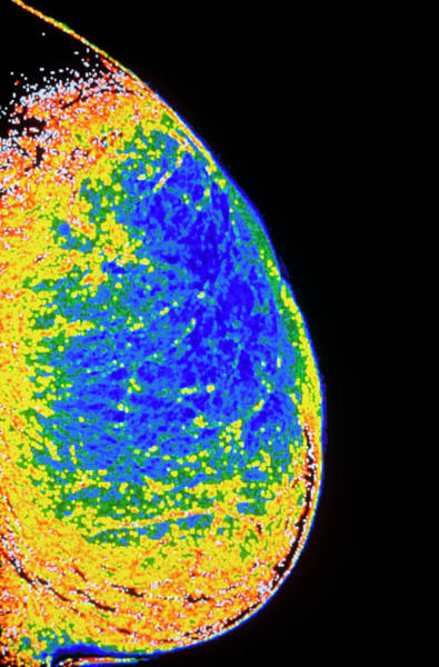 Adipose Tissue Photograph - Coloured X-ray Of Breast During Menopause by Gca/science Photo Library