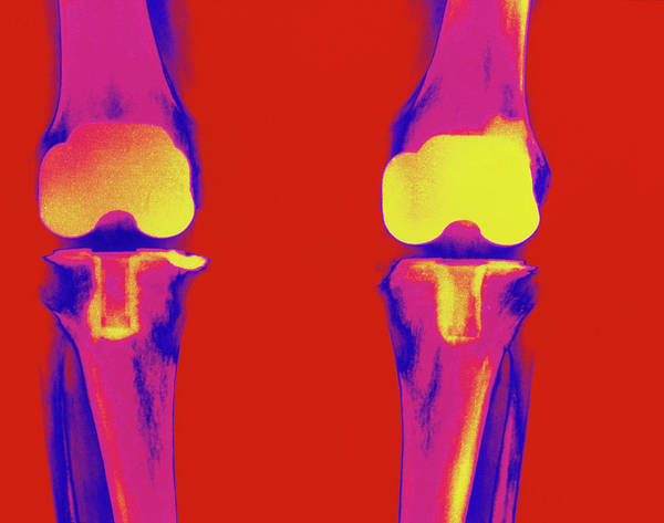 Knees Wall Art - Photograph - Coloured X-ray Of Prosthetic Knee Joints by Medical Photo Nhs Lothian/science Photo Library