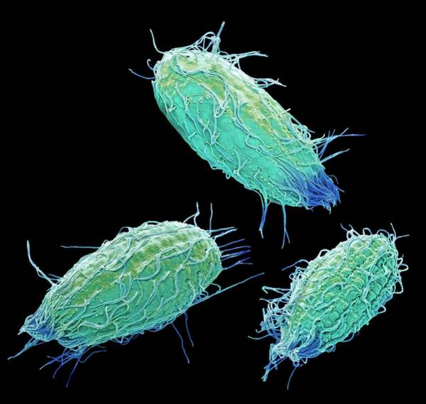 Buccal Wall Art - Photograph - Colpidium Ciliate Protozoa by Steve Gschmeissner/science Photo Library