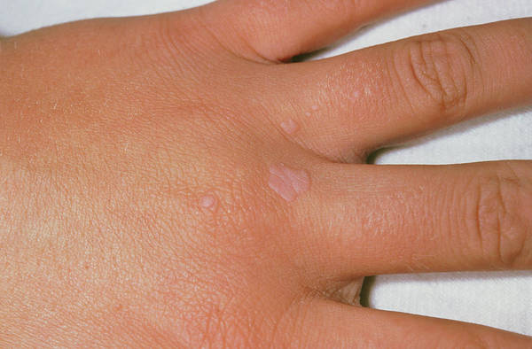 Wart Wall Art - Photograph - Common Warts On The Hand by Dr P. Marazzi/science Photo Library
