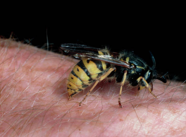 Wasp Photograph - Common Wasp Stinging Human by Dr Jeremy Burgess/science Photo Library