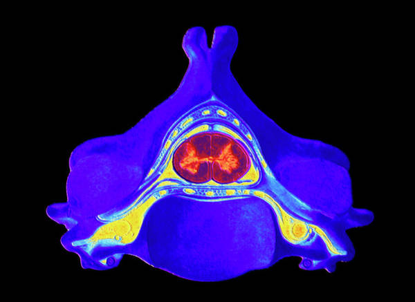 Vertebrae Photograph - Computer Art Of Cervical Vertebra With Spinal Cord by Alfred Pasieka/science Photo Library