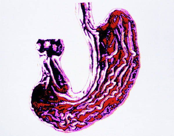 Digestive Systems Photograph - Computer Artwork Of Stomach And Lower Oesophagus by Alfred Pasieka/science Photo Library