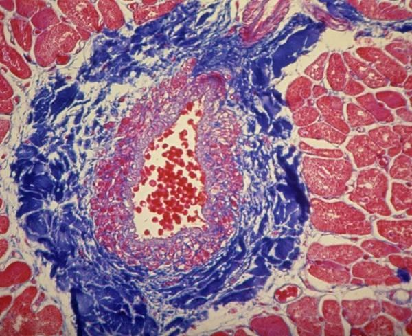 Artery Wall Art - Photograph - Coronary Artery by Overseas/collection Cnri/spl