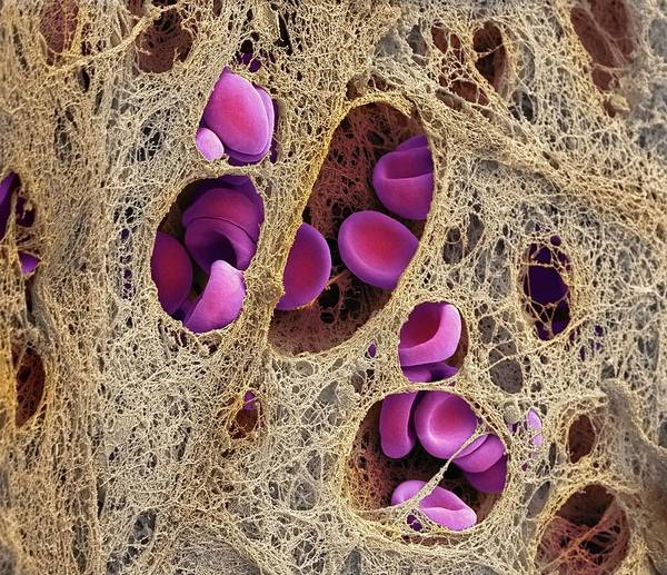 Hematology Wall Art - Photograph - Coronary Blood Clot by Steve Gschmeissner/science Photo Library