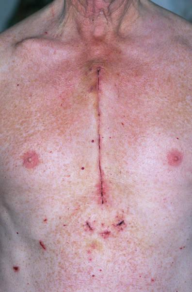 Coronary Bypass Chest Scar Art Print