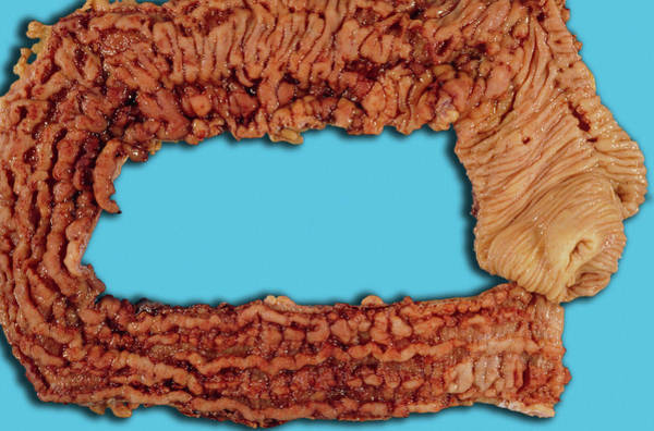Wall Art - Photograph - Crohn's Disease Colon by Medimage/science Photo Library