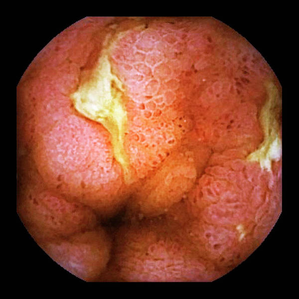 Chronic Wall Art - Photograph - Crohn's Disease by Gastrolab/science Photo Library
