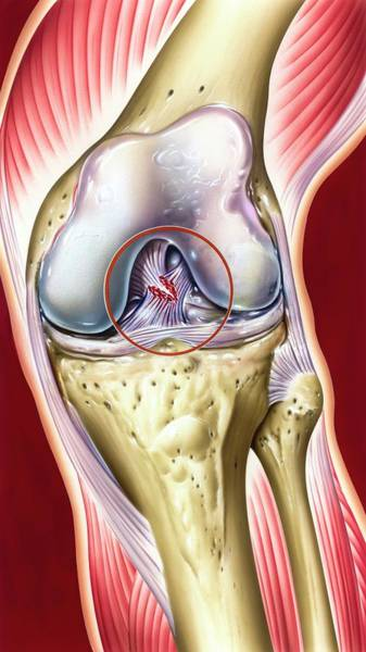 Cruciate Ligament Knee Injury Art Print by John Bavosi