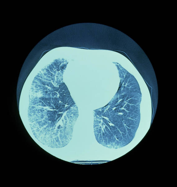 Wall Art - Photograph - Ct Scan Of Lungs Showing Interstitial Fibrosis by Science Photo Library