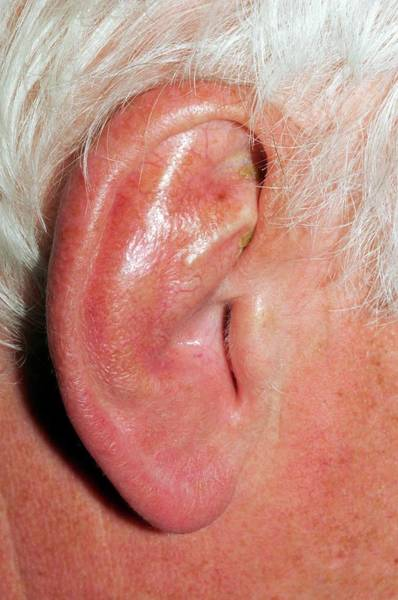 65 Photograph - Damaged Ear From Playing Rugby by Dr P. Marazzi/science Photo Library