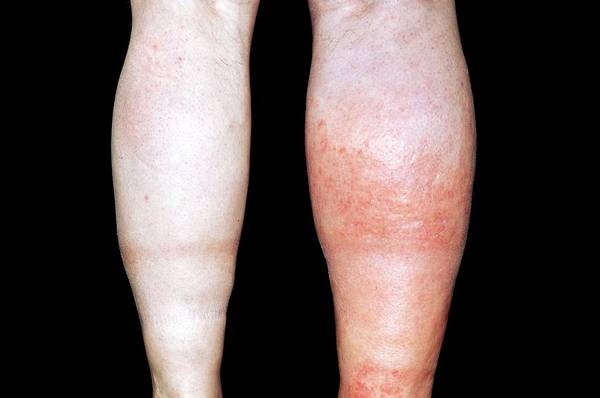 Inflammation Wall Art - Photograph - Deep Vein Thrombosis In The Leg by Dr P. Marazzi/science Photo Library