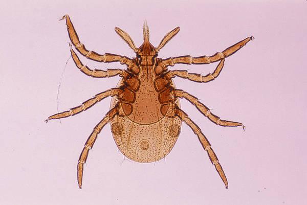 Deer Tick Nymph. Ixodes Dammini. Vector Of Lyme Disease. Head Contains Formidable Piercing Organ (hypostome). 10x Art Print by Ed Reschke