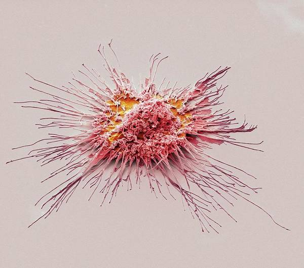 Kupffer Cell Photograph - Dendritic Cell by Steve Gschmeissner/science Photo Library