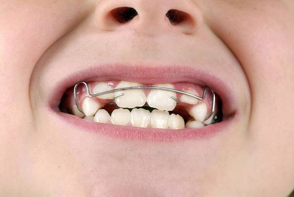 Wall Art - Photograph - Dental Braces by Lea Paterson/science Photo Library