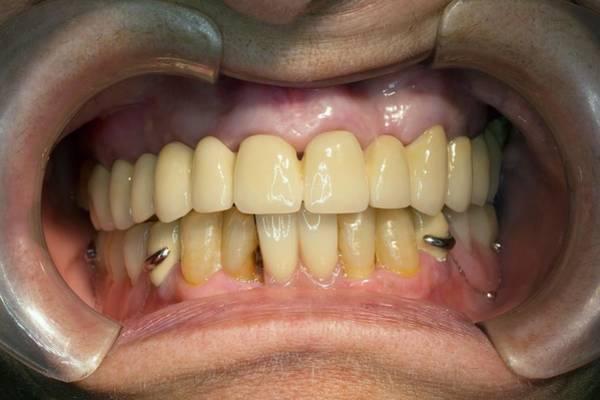 Wall Art - Photograph - Dental Bridge And Prosthesis by Dr Armen Taranyan / Science Photo Library