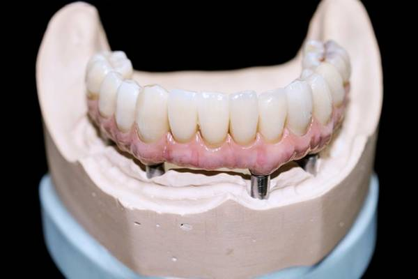 Impression Photograph - Dental Cast With Bar-retained Denture by Dr Armen Taranyan / Science Photo Library