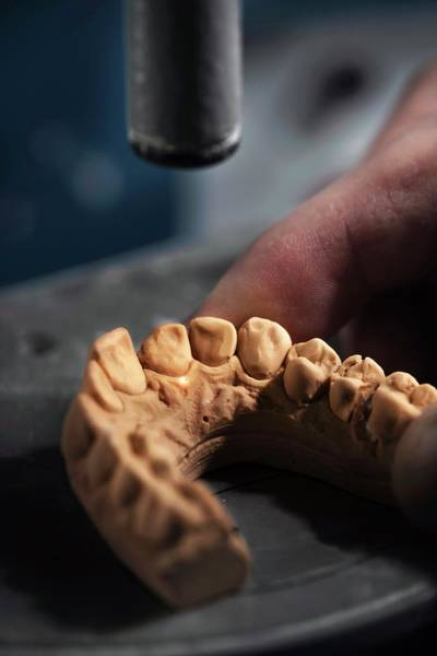 Impression Photograph - Dental Mold by Ktsdesign/science Photo Library