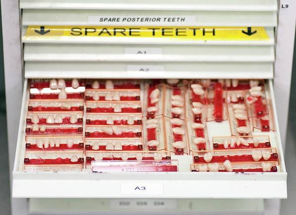 Dentistry Wall Art - Photograph - Dental Veneers by Cmft Manchester