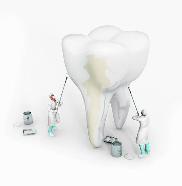Computer Graphics Painting - Dentists Whitening Large Tooth by Ikon Ikon Images